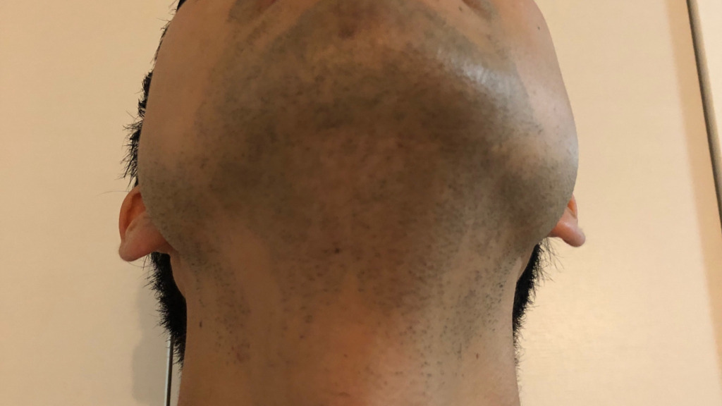 ヒゲ脱毛前の写真