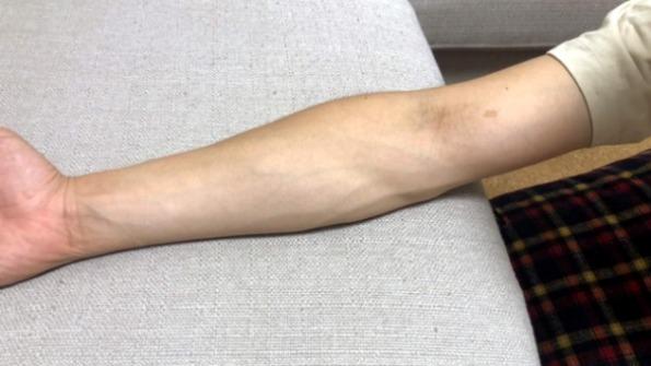 どれだけ白くなれるか知る方法⇨肘の表側(陽に当たらないから白い)